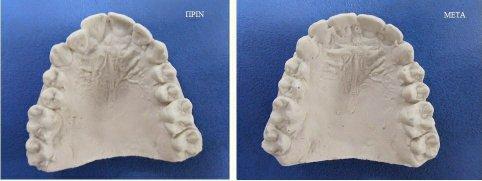 γυψινο αποτύπωμα οδοντοστοιχίας